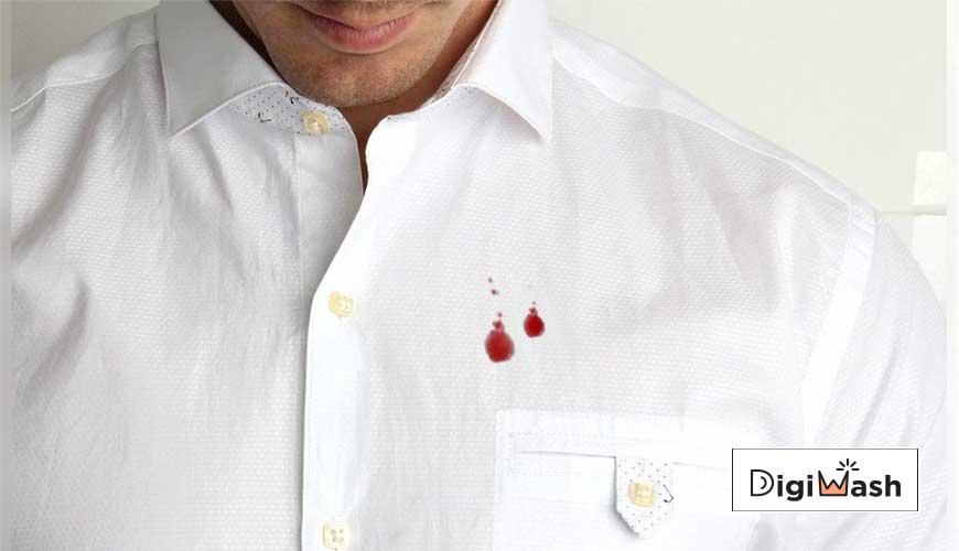 پاک کردن لکه خون از روی لباس